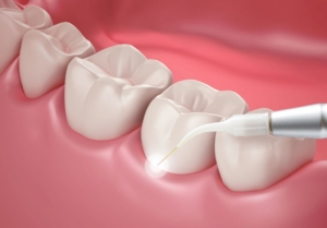Laser Gum Treatment - Pain free solution for gum disease